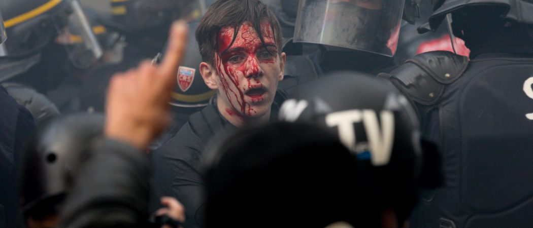The face of a demonstrator is injured during a rally called by several French workers unions on October 9, 2018 in Paris as part of a nationwide day of demonstrations against French President Emmanuel Macron's policies.
